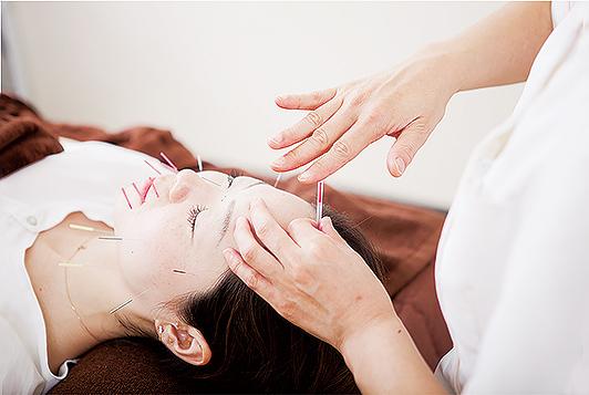 鍼灸でリフトアップ! スッキリ小顔をつくる青木式美容鍼灸