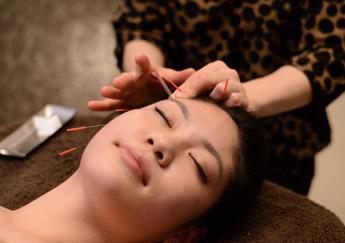 スッキリ小顔をつくる!美容鍼灸の効果