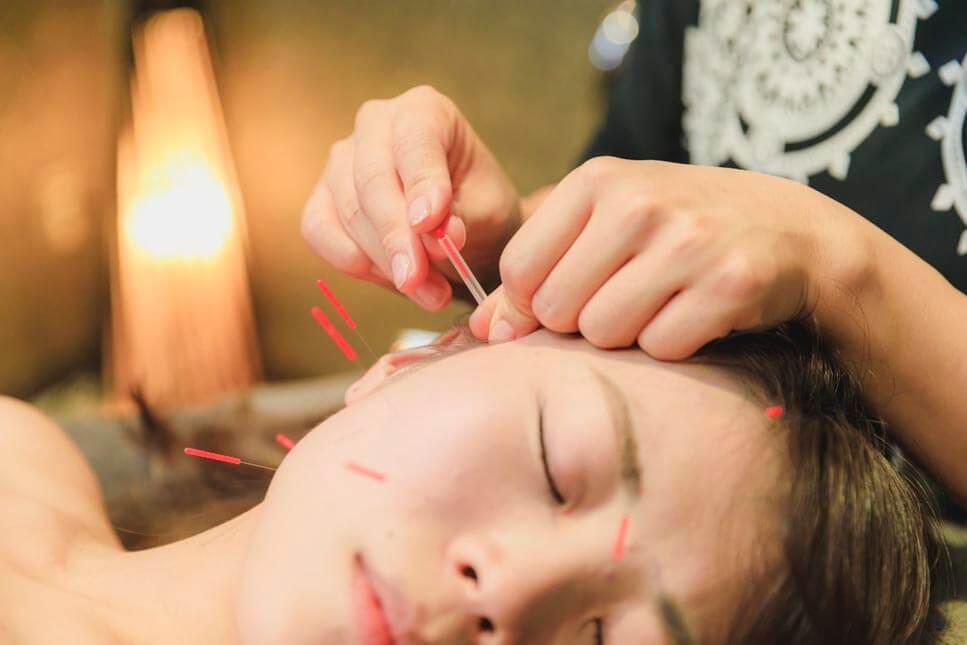 鍼灸でリフトアップ! 小顔になれる美容鍼灸