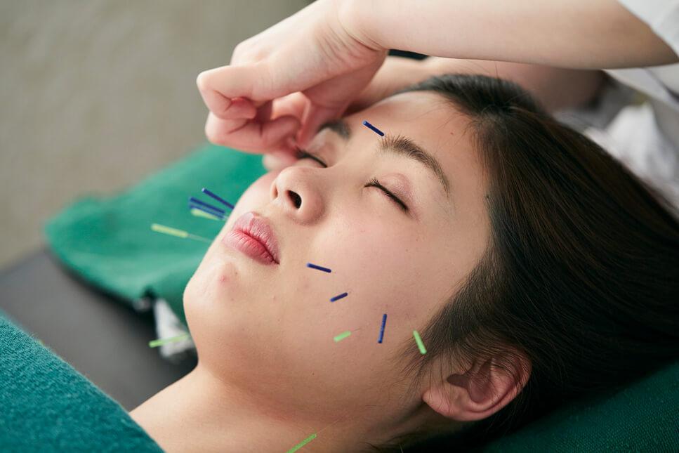 小顔美人になれる美容鍼灸の効果