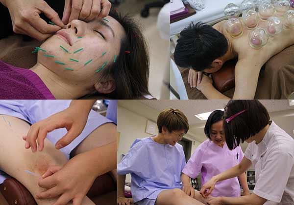 日本医専の4大鍼灸「実技体験フェス」