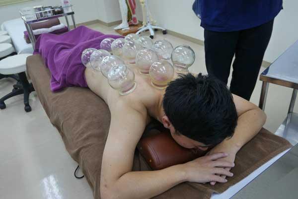 鍼灸×カッピング(吸い玉)療法