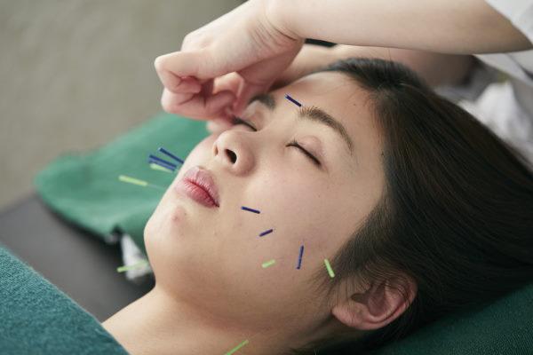 小顔になれる青木式美容鍼灸