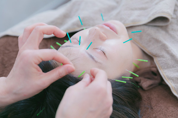 きれいなすっぴん素肌をつくる ~美容鍼灸の効果~
